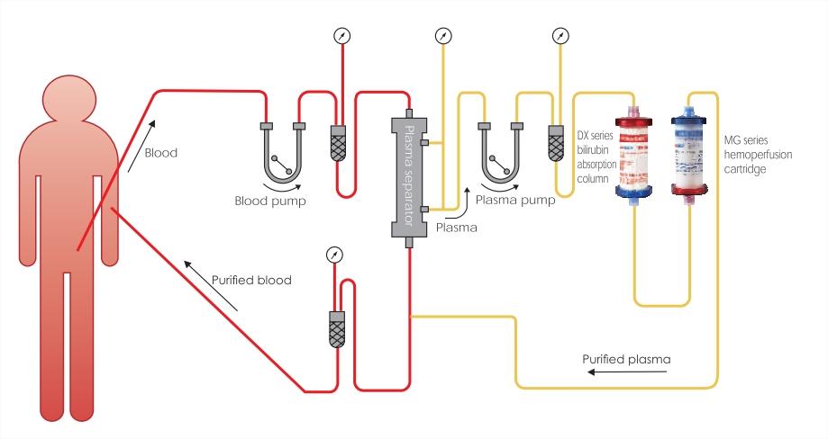 Double plasma molecule - Absorption system bilirubin absorption column