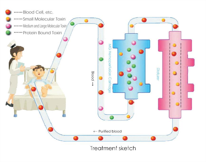 Hemoperfusion treatment sketch