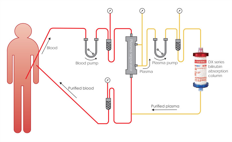 Treatment sketch - Plasma Bilirubin Absorption